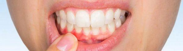 Джинджифил за лечение на венците и зъбите